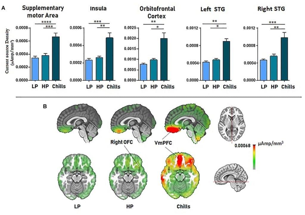 Activité du cerveau par zone
